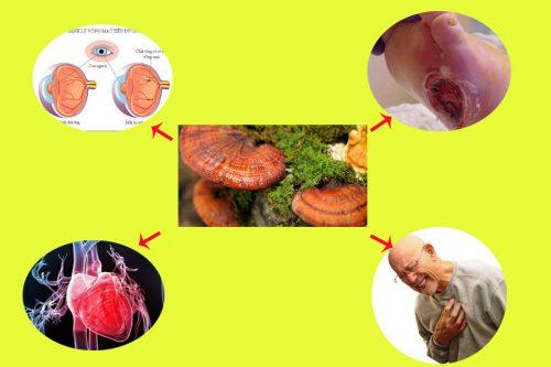 Nấm lim xanh rừng giúp điều trị và ngăn ngừa biến chứng tiểu đường.