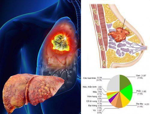 Các loại bệnh ung thư thường gặp