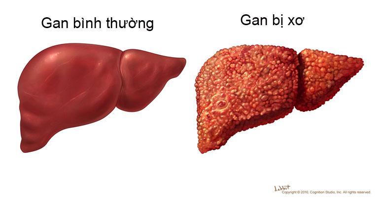 Hình ảnh so sánh giữa gan bình thường và gan bị xơ