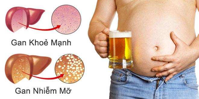 Uống nhiều rượu bia là một trong những nguyên nhân hàng đầu gây ra bệnh ban nhiễm mỡ