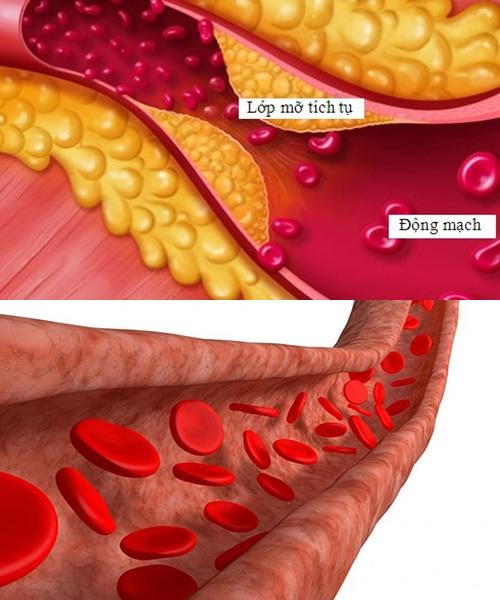 Bệnh mỡ máu cao là nguyên nhân dẫn đến các bệnh nguy hiểm khác như xơ vữa động mạch
