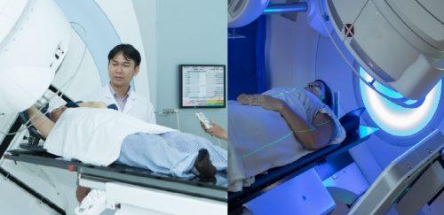 Phương pháp điều trị ung thư vú bằng xạ trị