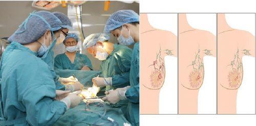 Phương pháp điều trị ung thư vú là gì?