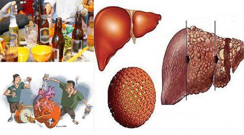 Thói quen gây ung thư gan