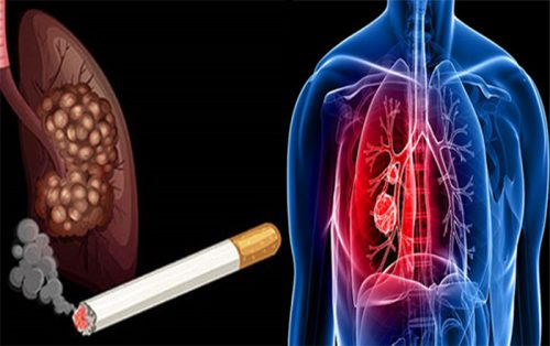 Thói quen gây ung thư phổi