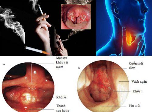 Thói quen gây ung thư vòm họng