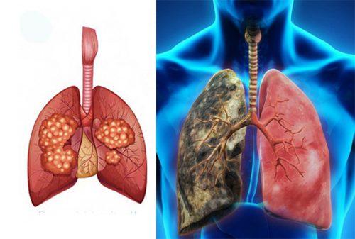 Nguyên tắc phòng ngừa ung thư phổi