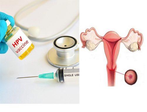 Nguyên tắc phòng tránh ung thư cổ tử cung