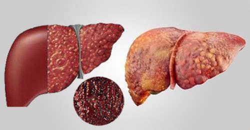 Nguyên tắc phòng tránh ung thư gan