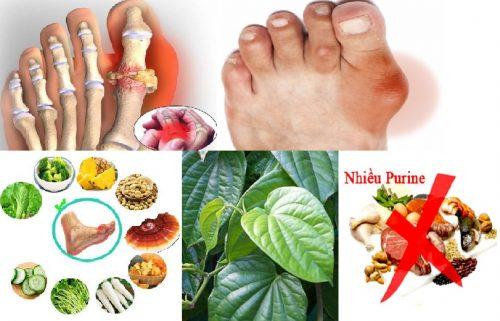 Bệnh gout (bệnh thống phong) và những vấn đề liên quan