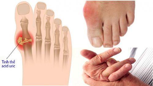 Bệnh gout là gì và bản chất của bệnh gout