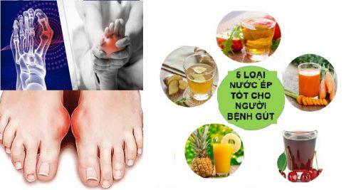 Bị bệnh gout nên uống gì?