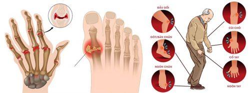 Biến chứng khi điều trị gout sai cách