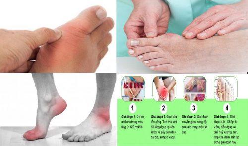 Các giai đoạn của bệnh gout là gì?