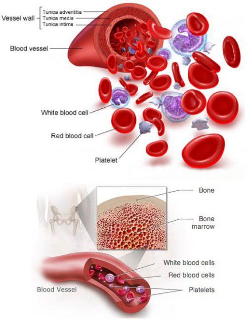 Các loại ung thư máu