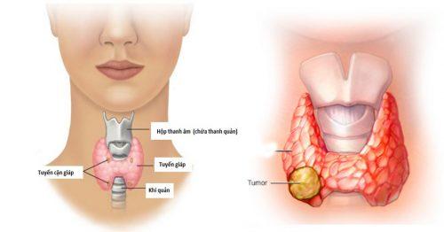 Các giai đoạn ung thư tuyến giáp
