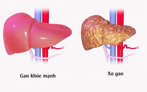 Bệnh xơ gan gây ra nhiều biến chứng nguy hiểm.