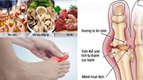 Có nhiều nguyên nhân gây ra bệnh gout
