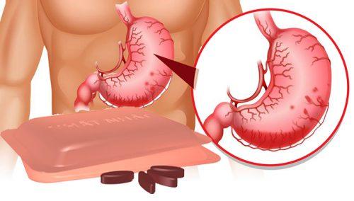 Công dụng của các thực phẩm chức năng tốt cho dạ dày