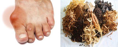 Điều trị bệnh gout bằng Đông y