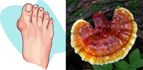 Điều trị bệnh gout bằng nấm lim xanh