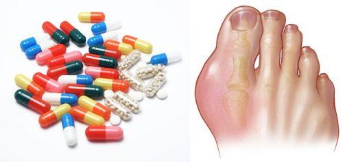 Điều trị bệnh gout bằng thuốc tây