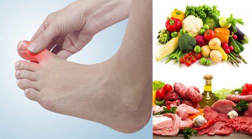 Điều trị bệnh gout nên ăn gì và kiêng gì?