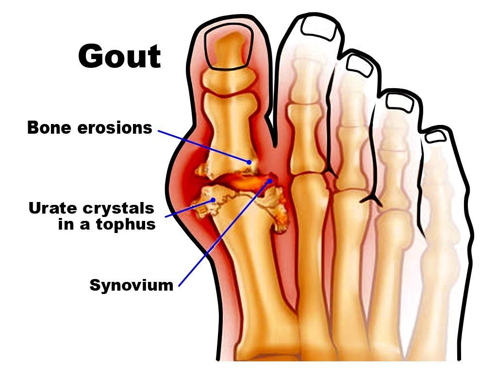 gout là bệnh lý phổ biến hiện nay
