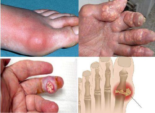 Hình ảnh bệnh gout