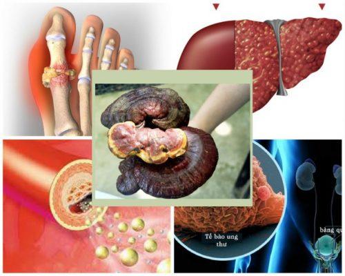 Chữa ung thư, gout, xơ gan, mỡ máu là lời giải đáp cho câu hỏi nấm cây lim xanh chữa bệnh gì