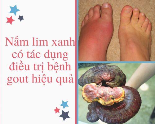 Nấm lim xanh rừng tác dụng gì với bệnh gout?