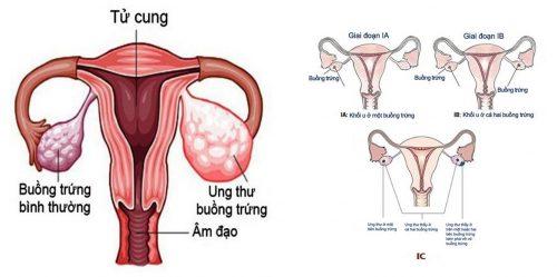 Nguyên nhân ung thư buồng trứng