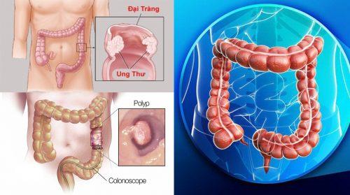 Nguyên nhân ung thư đại tràng