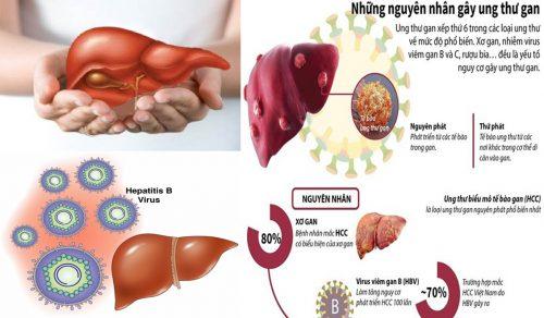 Nguyên nhân ung thư gan