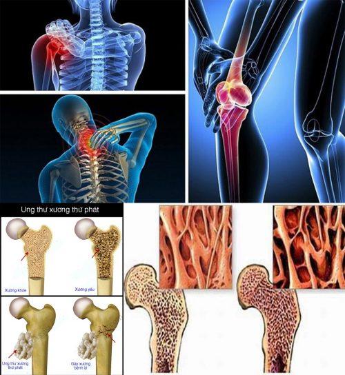 Nguyên nhân ung thư xương