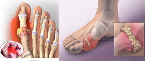 Nguyên tắc điều trị bệnh gout