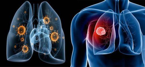 Những dấu hiệu ung thư phổi không tế bào nhỏ các giai đoạn