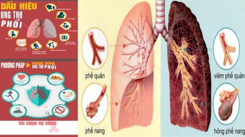Những quan niệm sai về ung thư phổi