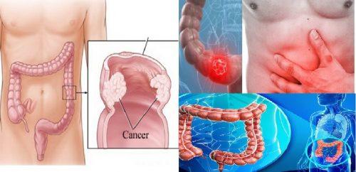 Phòng ngừa nguy cơ gây ung thư đại trực tràng ở người già