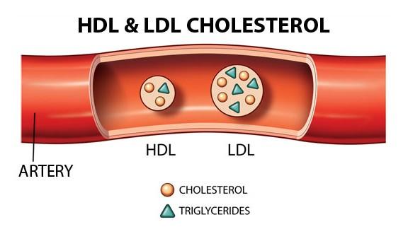 hình ảnh mô tả sự rối loại của HDL cholesterol
