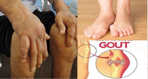 Triệu chứng của bệnh gout mãn tính