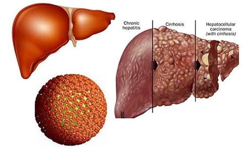 Hình ảnh so sánh giữa gan bình thường và viêm gan siêu vi B