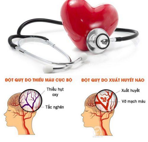 Cách giảm nguy cơ đột quỵ