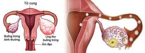 Cách phòng tránh ung thư buồng trứng cho phụ nữ