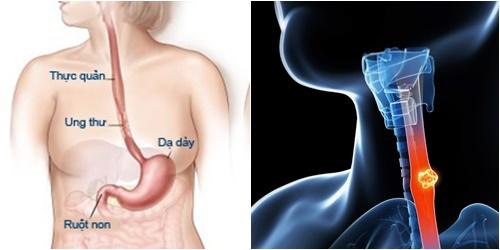 Ung thư thực quản giai đoạn đầu sẽ xuất hiện triệu chứng khó nuốt gây khó khăn khi ăn