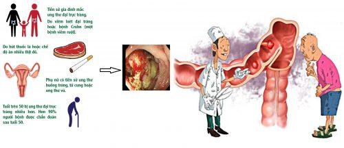 Nguyên nhân gây ung thư đại trực tràng