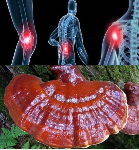 Tác dụng của nấm gỗ lim với người bị ung thư xương