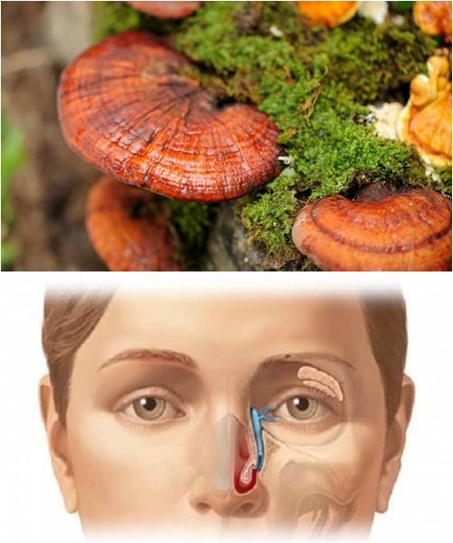 Uống nước nấm lim xanh rừng để giảm các triệu chứng bệnh ung thư xoang mũi