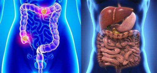 Ung thư đại trực tràng là gì?