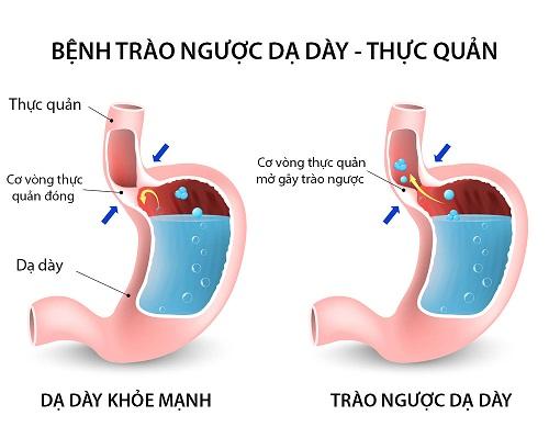 Trào ngược dạ dày thực quản đang có xu hướng tăng tại Việt Nam